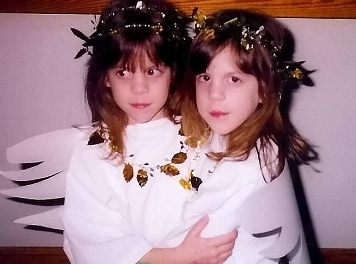 Сёстры-близнецы сменили пол и стали братьями — вот, как сложилась их судьба