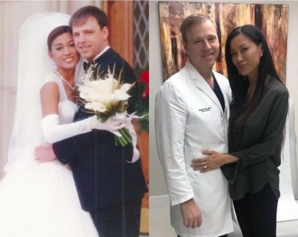 Пластический хирург изменил внешность жены до неузнаваемости