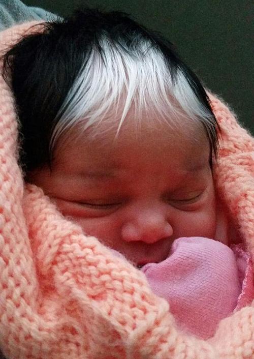 Эта малышка родилась с белоснежной прядью волос. Она удивила всех, кроме своей мамы…