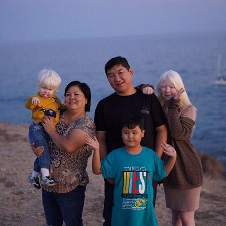 Сестрички-альбиносы из Казахстана — настоящее чудо!
