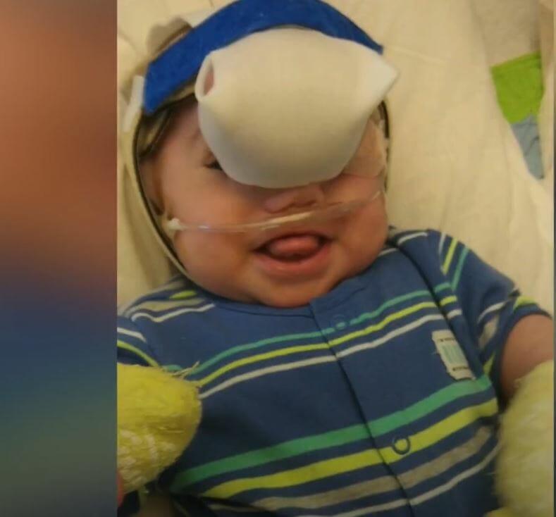 Малыш родился с огромным образованием на носу. Но сейчас его просто не узнать!