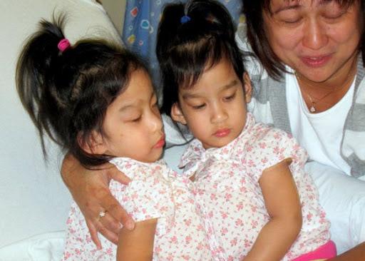 Сестры Сабуко — сиамские близнецы которых удалось удачно разделить