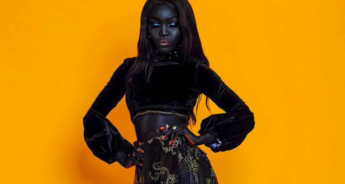 Девушка раньше очень комплексовала из-за своего цвета кожи, а сейчас она популярная модель