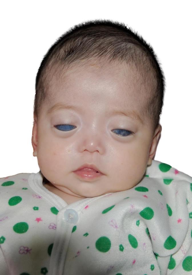 Как сложилась жизнь девочки с «серебряными глазами», которую никто не хотел удочерять