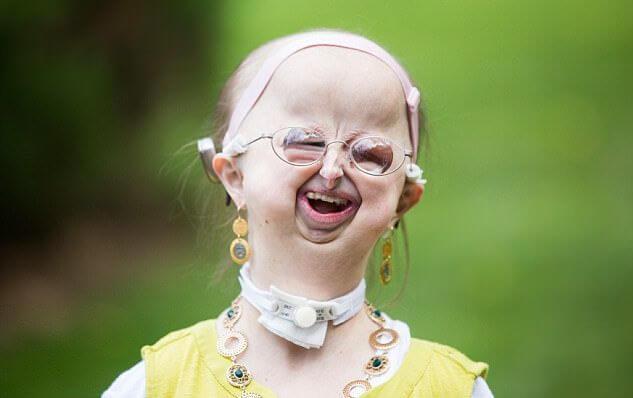 В свои 20 лет она выглядит как маленький ребенок. Но девушка нашла себя в жизни и абсолютно счастлива