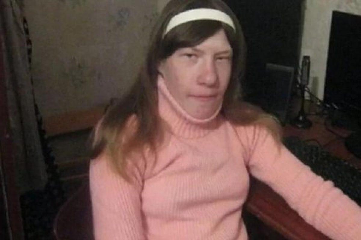 Как сложилась жизнь Вероники Зайцевой, с которой все смеялись из-за необычной внешности?