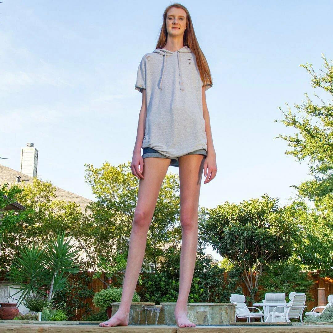 17-летняя девушка является обладательницей самых длинных ног в мире