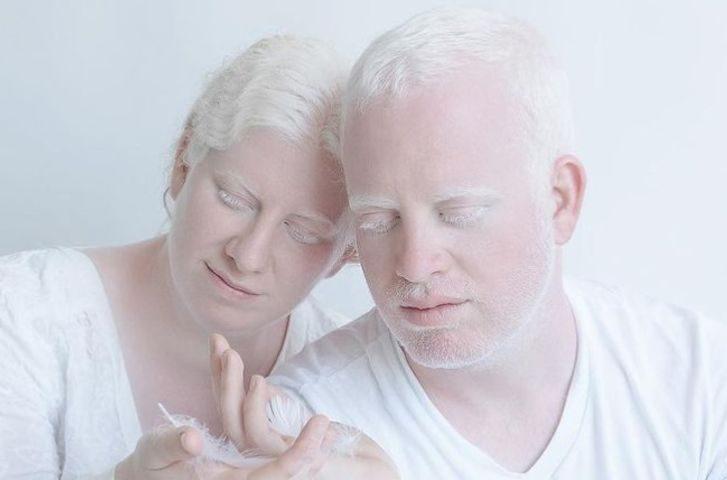 Нереальная красота людей-альбиносов в фотопроекте «Фарфоровые люди»