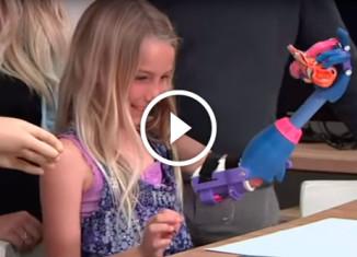 7-летняя девочка получила 3Д протез